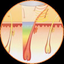 épilation - vue en coupe faisceau lumineux