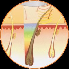 épilation - vue en coupe du poil brûlé
