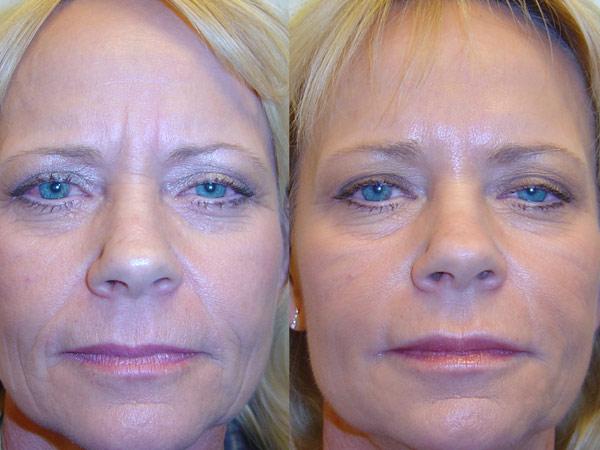 Injections de botox Avant/après