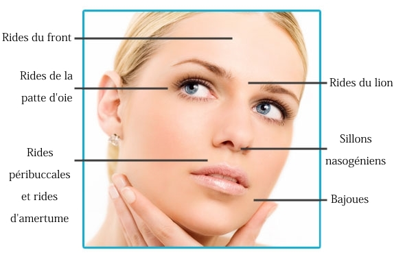 zones pour injection de botox